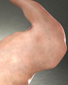 Discobolus Detail 1