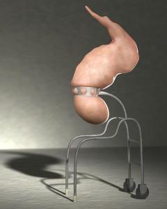 Discobolus